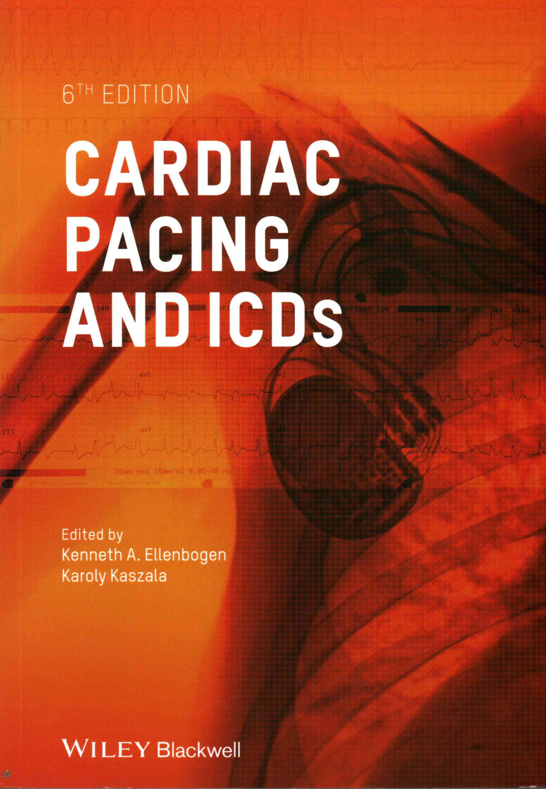 Cardiac Pacing and Icds By Ellenbogen, Kenneth A. (EDT)/ Kaszala, Karoly (EDT)